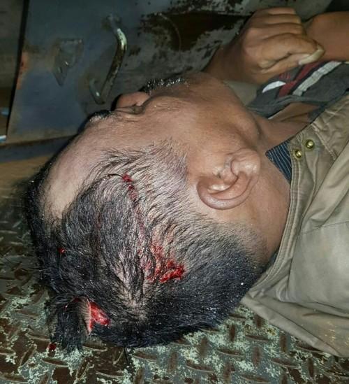Kematian Maslin Sihombing Di Warung Jhonson Masih Teka-Teki
