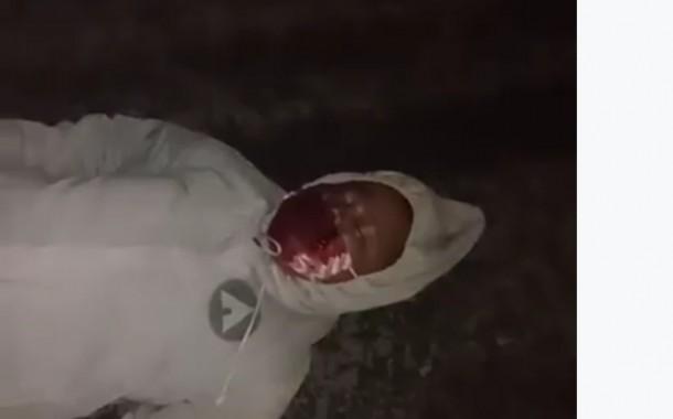 Hati-Hati Jalan Rusak di Perlintasan KA Jalan Ahmad Yani Siantar Kembali Makan Korban Jiwa
